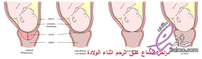 طريقة تفتح الرحم بسرعه.اتساع عنق الرحم.تفتح الرحم بدون الم.اشياء اعشاب تساعد على فتح الرحم