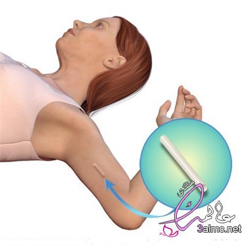 الحمل بعد ازالة شريحة منع الحمل