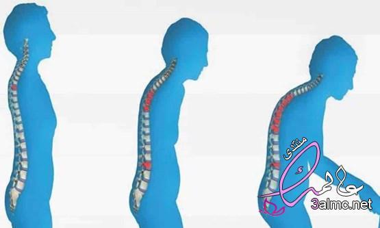 5 طرق طبيعية للقضاء على هشاشة العظام علاج هشاشة العظام