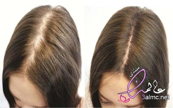 زراعة الشعر الطبيعى ..معلومات هامة لكى سيدتى